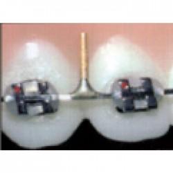 Arcos acero con postes europa II 016X025 Kit completo